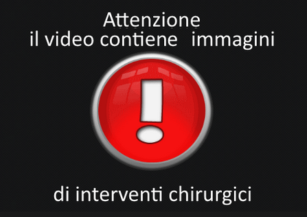 avviso video inrterventi chirurgici